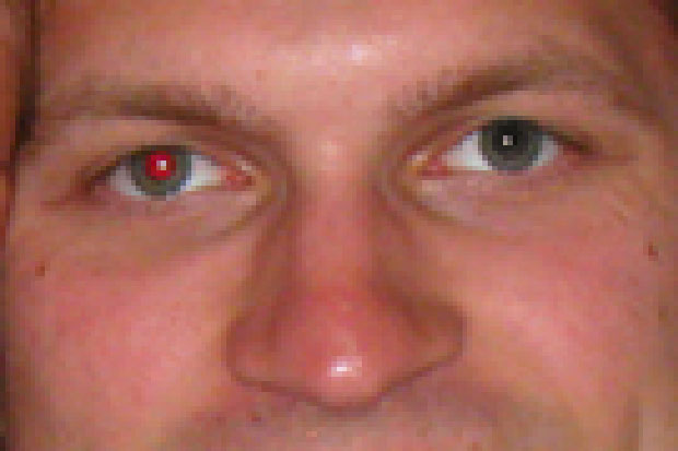 Red eye in one eye has been removed